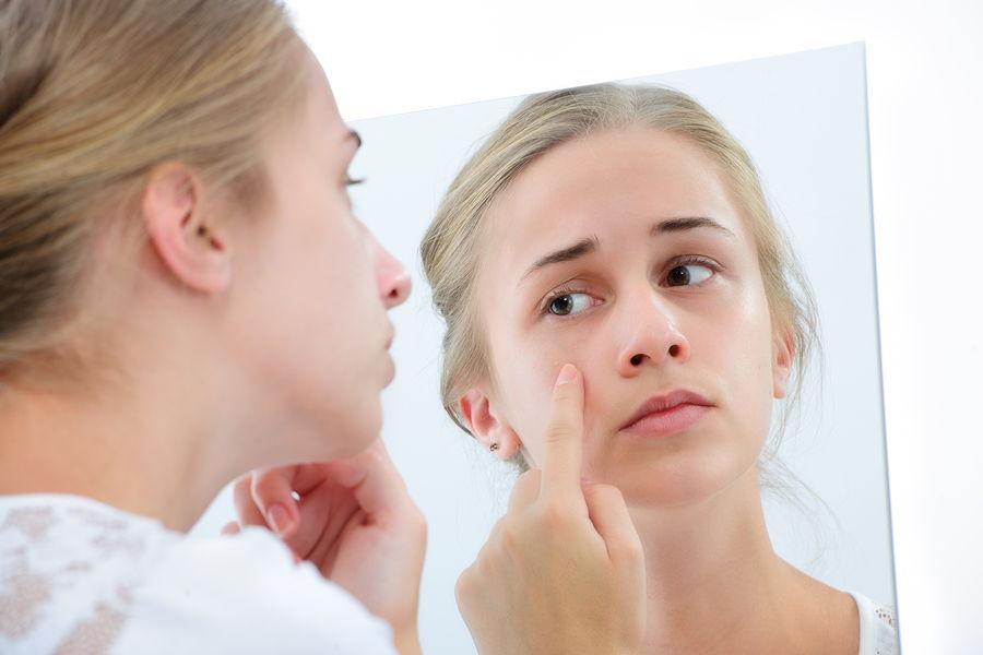 عوامل جوش صورت و درمان